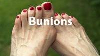 Thumb for bunions-promotion.jpg (26 KB)